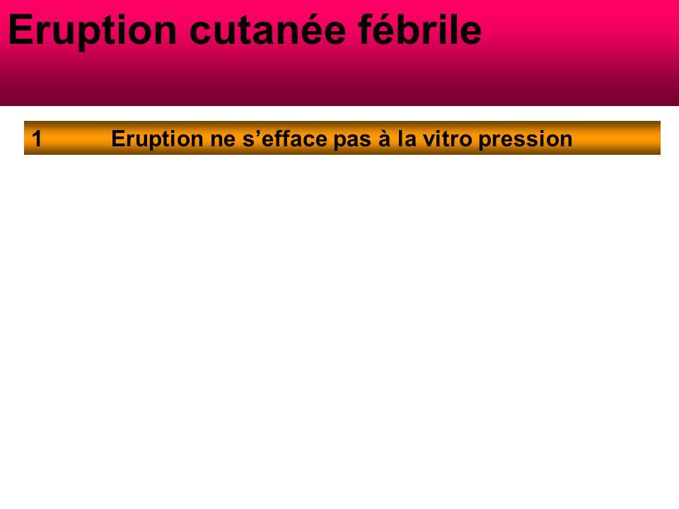 Eruption cutanée fébrile Eruption ne s'efface pas à la vitro pression1