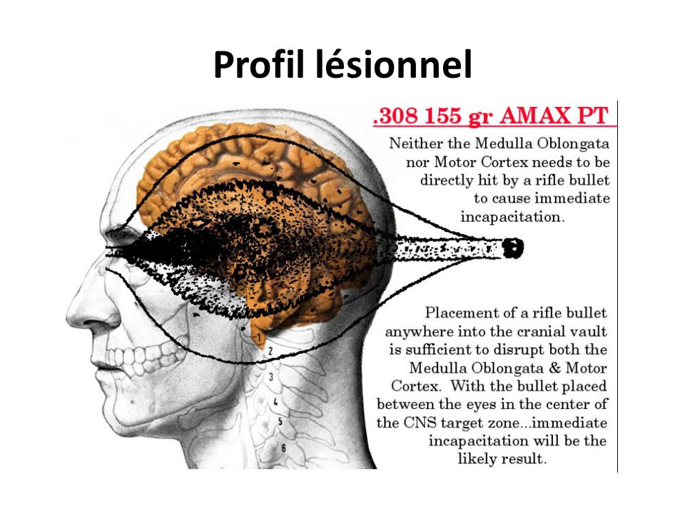 Profil lésionnel