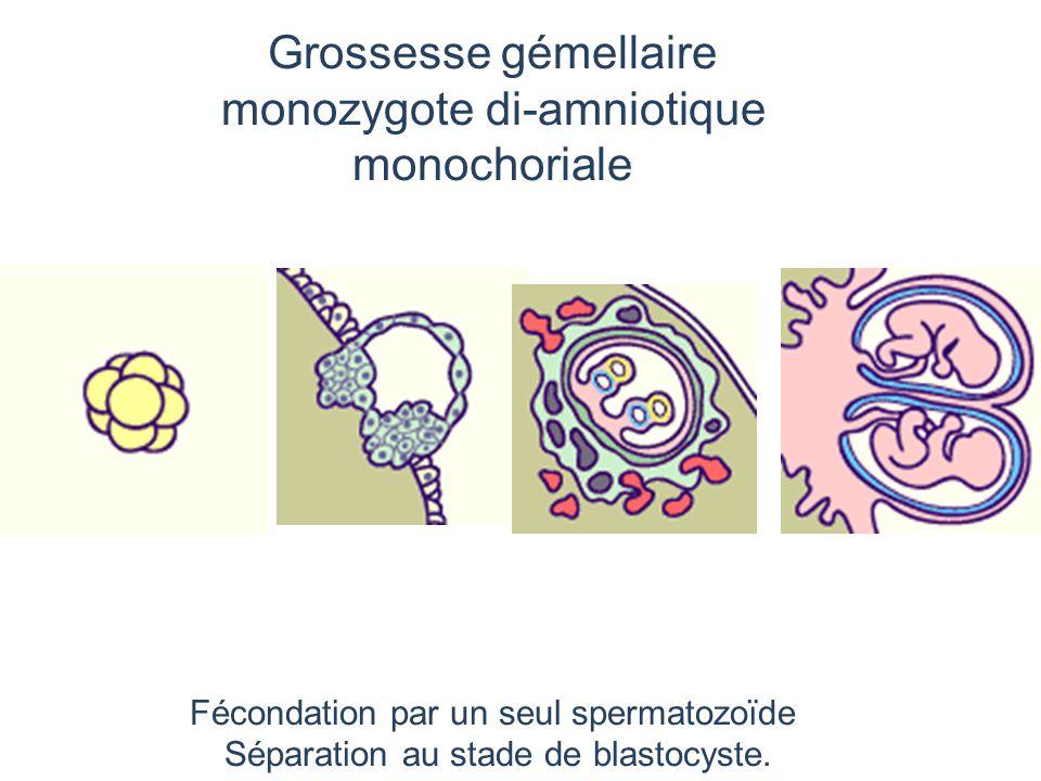 Grossesse gémellaire monozygote di-amniotique monochoriale Fécondation par un seul spermatozoïde Séparation au stade de blastocyste.