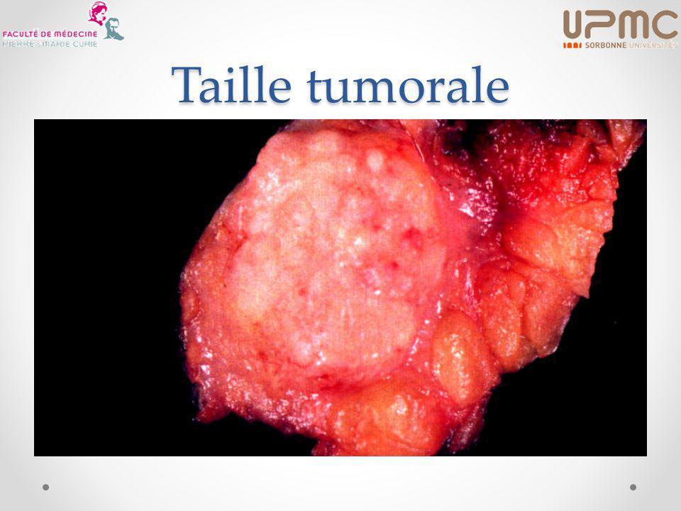 Neville, JCO 1992 (13 464 patientes) NB : T4d (inflammatoire) de même pronostic que M+