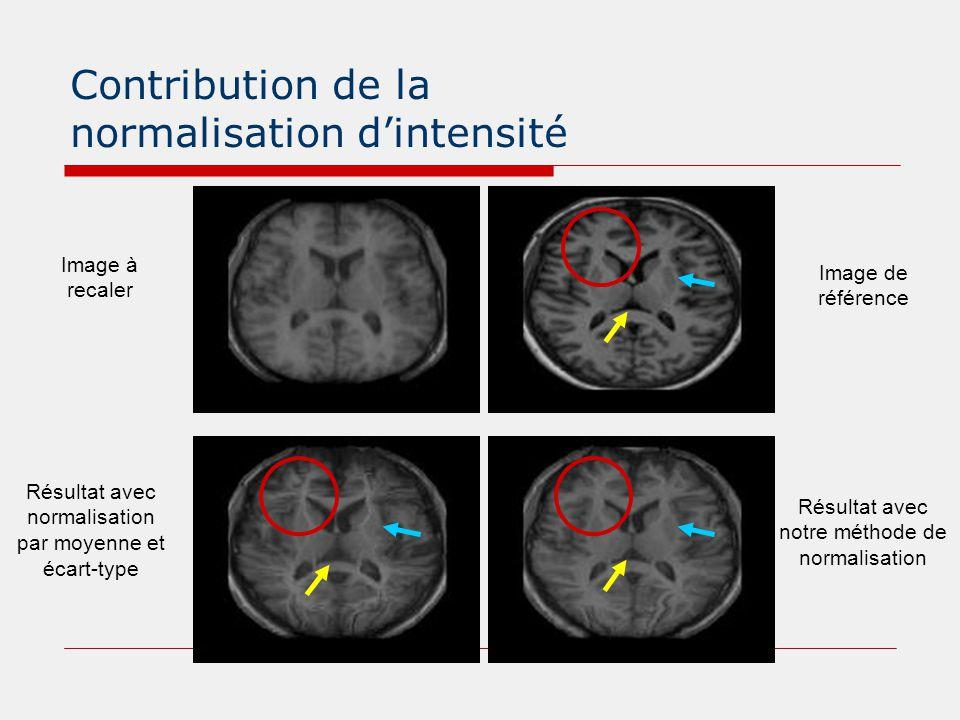 Contribution de la normalisation d'intensité Image de référence Image à recaler Résultat avec notre méthode de normalisation Résultat avec normalisati