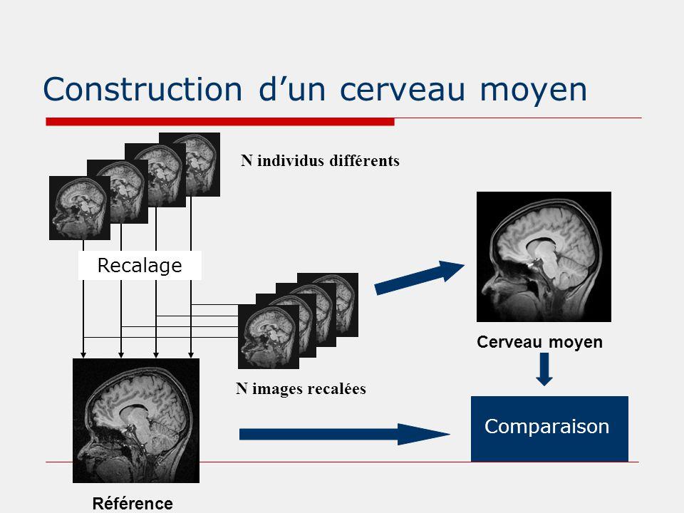 Construction d'un cerveau moyen Référence N individus différents Cerveau moyen Comparaison Recalage N images recalées