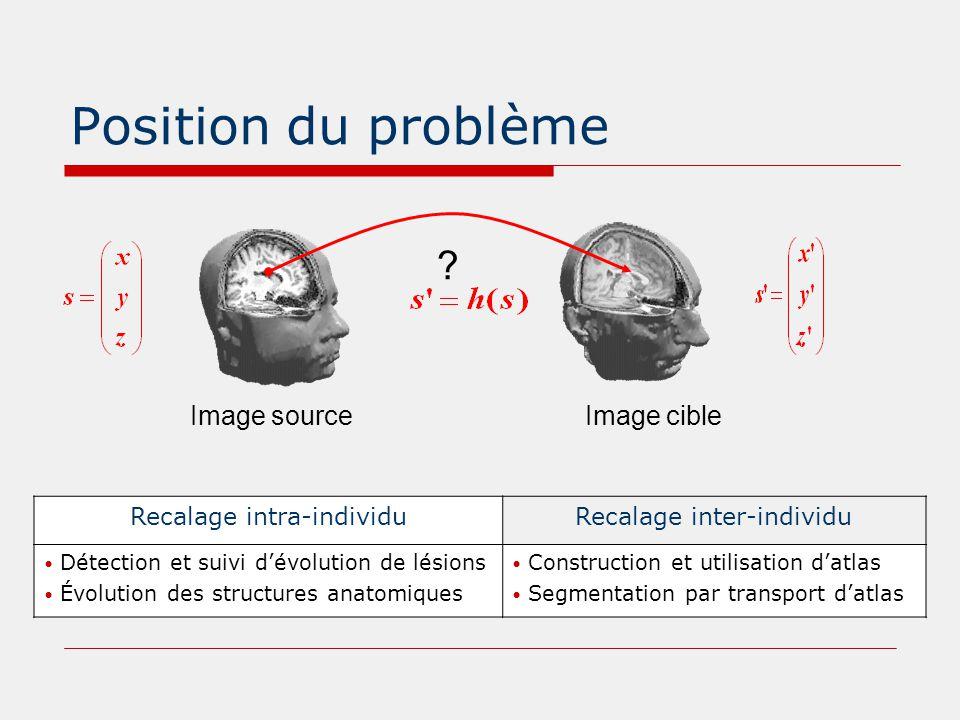 Position du problème Image sourceImage cible ? Recalage intra-individuRecalage inter-individu Détection et suivi d'évolution de lésions Évolution des