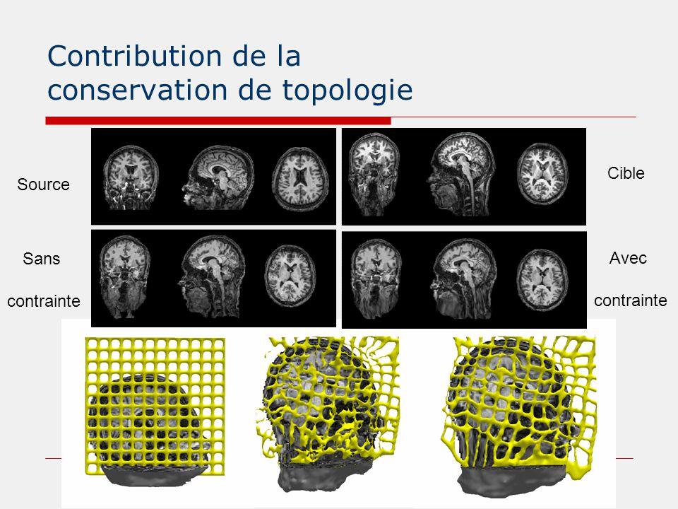 Segmentation par transport d'atlas Base IBSR * : 18 images T 1 256x128x256 Cartes de segmentation : MG-MB-LCR et 34 structures anatomiques * http://www.cma.mgh.harvard.edu/ibsr/index.html Carte de segmentation transportée Comparaison