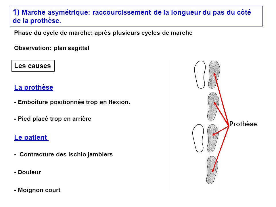 1) Marche asymétrique: raccourcissement de la longueur du pas du côté de la prothèse. - Emboîture positionnée trop en flexion. - Pied placé trop en ar