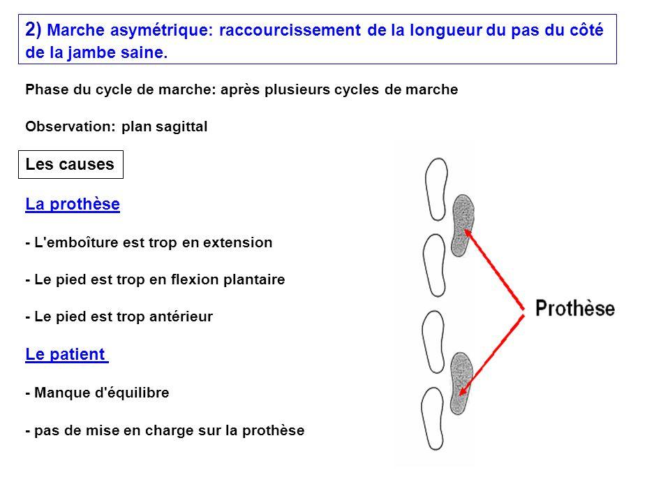 2) Marche asymétrique: raccourcissement de la longueur du pas du côté de la jambe saine. - Manque d'équilibre - L'emboîture est trop en extension - pa