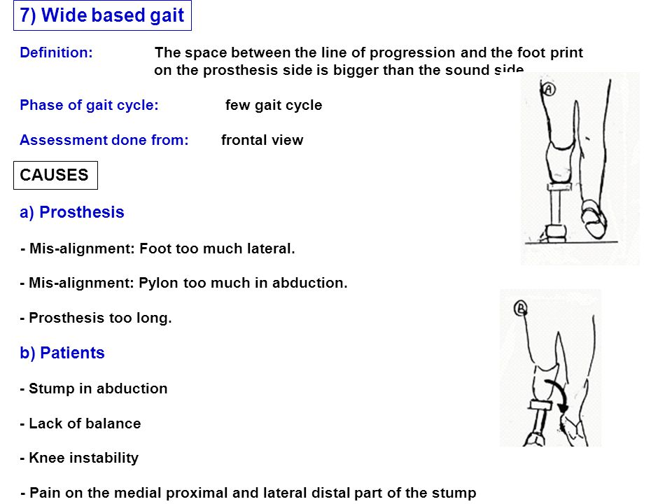 CAUSES a) Prosthesis b) Patients Phase of gait cycle: few gait cycle 7) Wide based gait Assessment done from: frontal view Definition: The space betwe