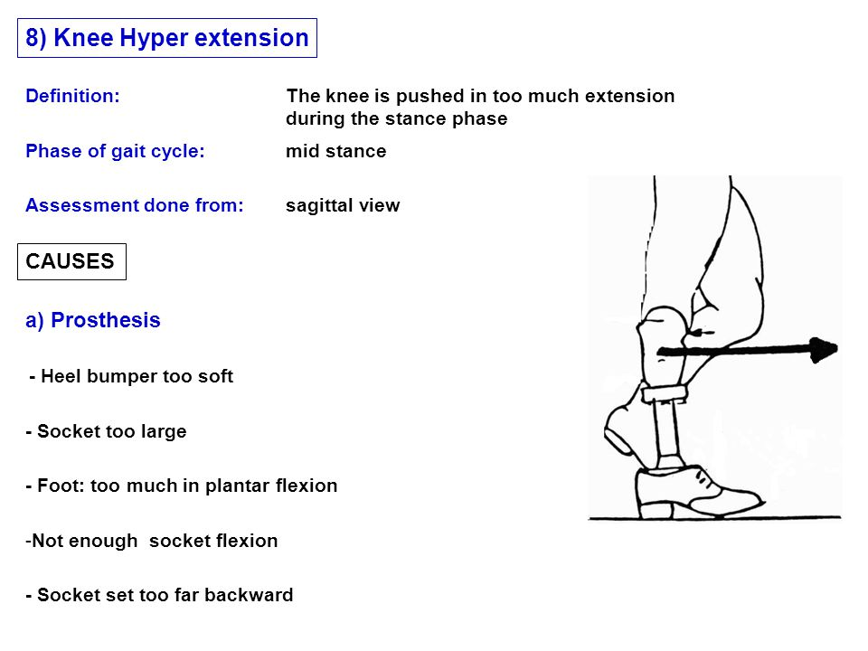 CAUSES a) Prosthesis Phase of gait cycle: mid stance 8) Knee Hyper extension Assessment done from: sagittal view Definition: The knee is pushed in too much extension during the stance phase - Heel bumper too soft - Socket set too far backward -Not enough socket flexion - Foot: too much in plantar flexion - Socket too large
