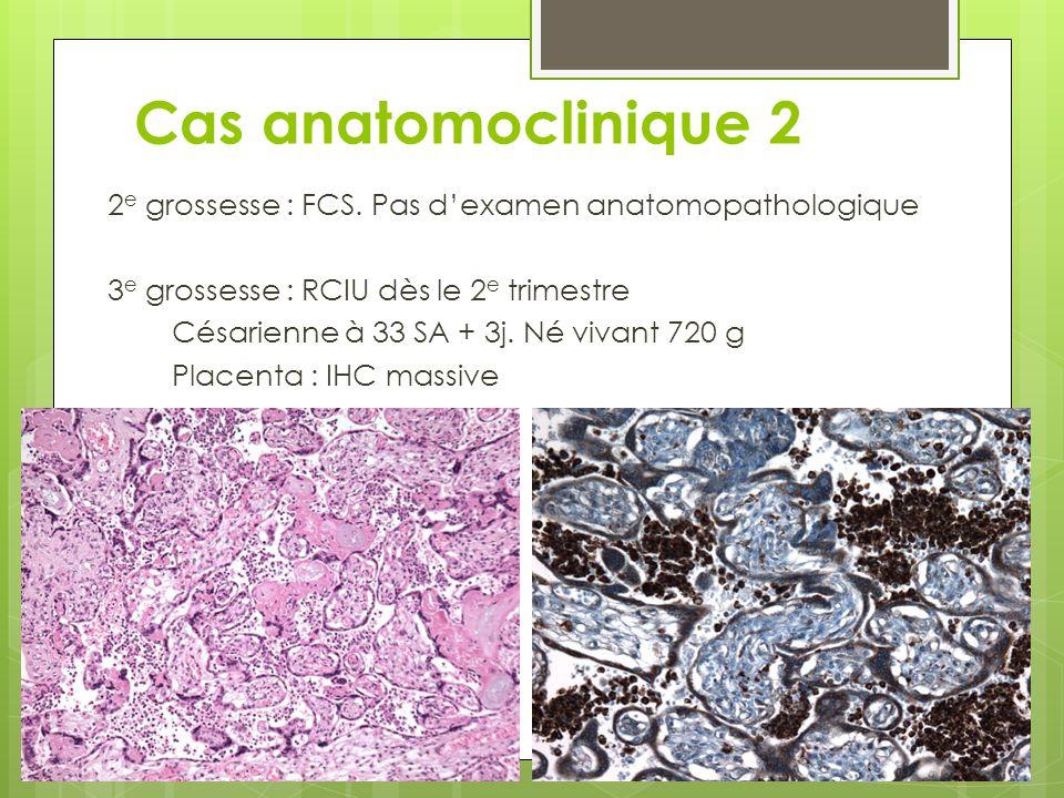 2 e grossesse : FCS. Pas d'examen anatomopathologique 3 e grossesse : RCIU dès le 2 e trimestre Césarienne à 33 SA + 3j. Né vivant 720 g Placenta : IH