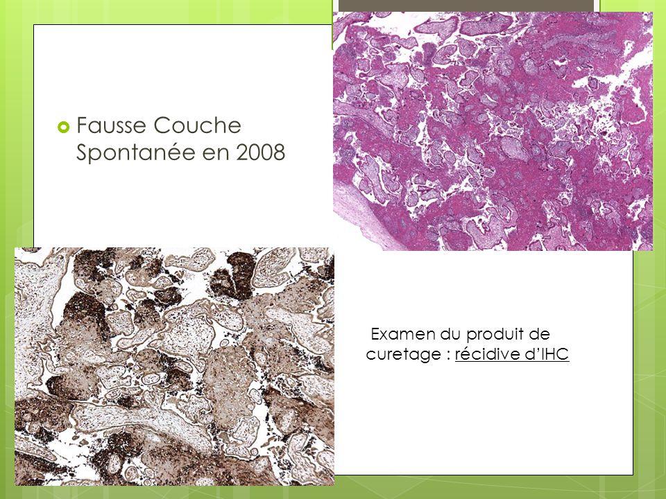  Fausse Couche Spontanée en 2008 Examen du produit de curetage : récidive d'IHC