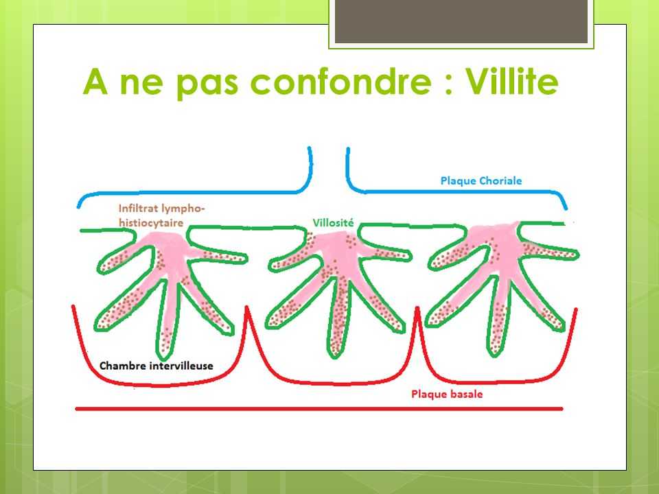 Histologie VC : Villosités choriales F : Fibrine His : Histiocytes