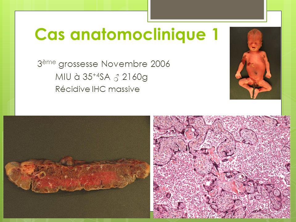 3 ème grossesse Novembre 2006 MIU à 35 +4 SA ♂ 2160g Récidive IHC massive Cas anatomoclinique 1