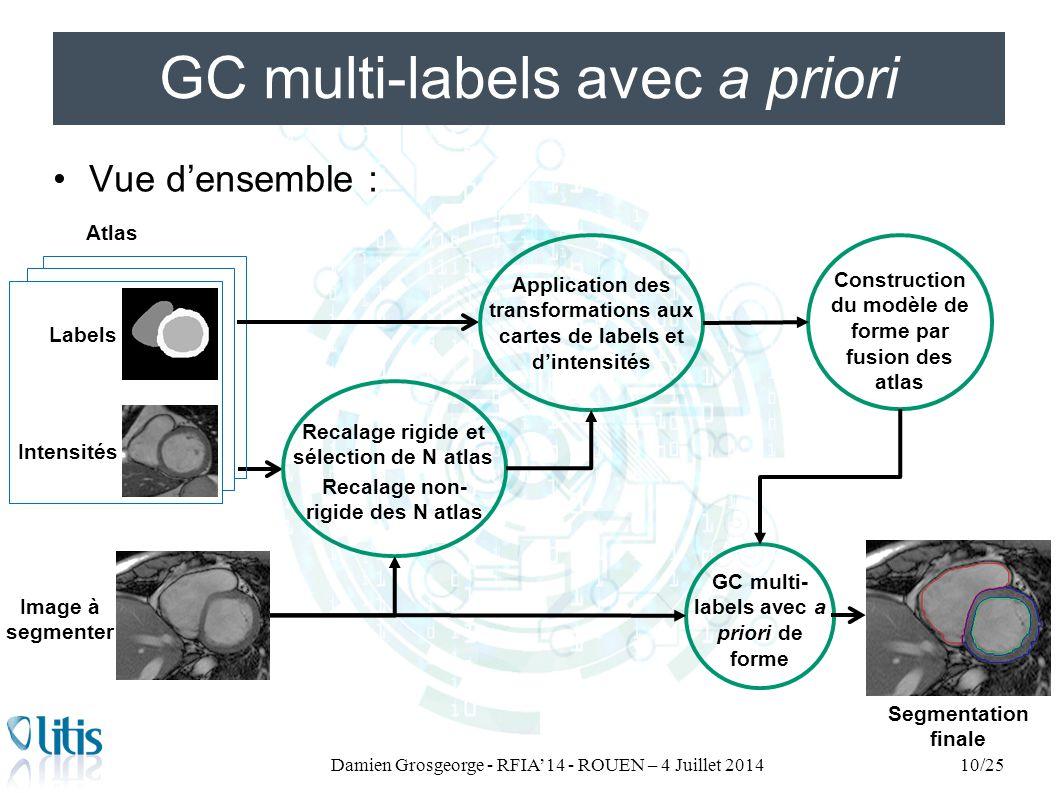 GC multi-labels avec a priori Vue d'ensemble : Damien Grosgeorge - RFIA'14 - ROUEN – 4 Juillet 201410/25 Atlas Recalage rigide et sélection de N atlas