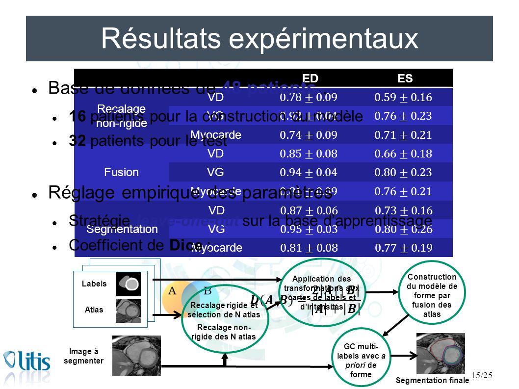 EDES Recalage non-rigide VD VG Myocarde Fusion VD VG Myocarde Segmentation VD VG Myocarde EDES Recalage non-rigide VD VG Myocarde Fusion VD VG Myocard