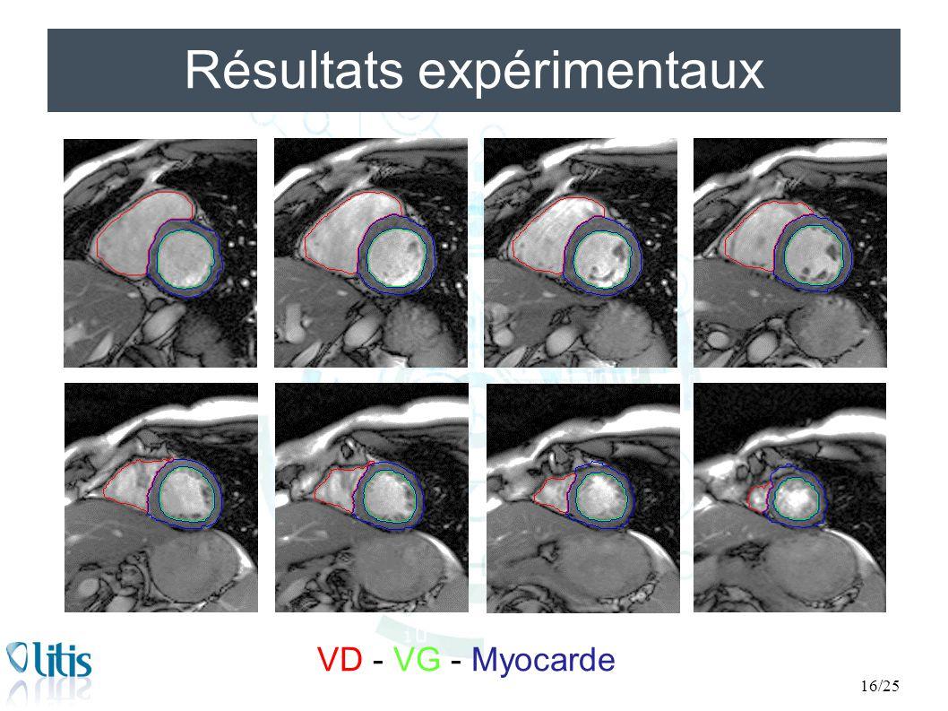 Résultats expérimentaux 16/25 VD - VG - Myocarde