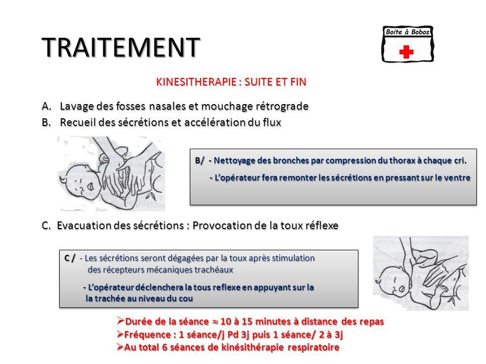 TRAITEMENT A.Lavage des fosses nasales et mouchage rétrograde B.Recueil des sécrétions et accélération du flux C. Evacuation des sécrétions : Provocat