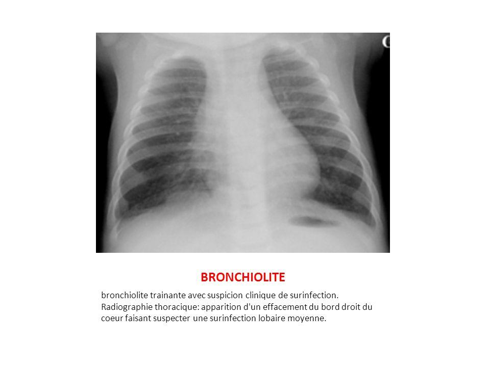 BRONCHIOLITE bronchiolite trainante avec suspicion clinique de surinfection. Radiographie thoracique: apparition d'un effacement du bord droit du coeu