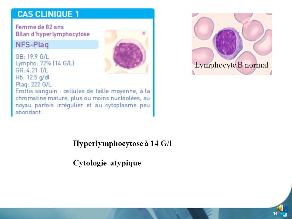 13 www.biomnis.com Etude de 3 cas cliniques et Experience de Biomnis sur 2009-2011