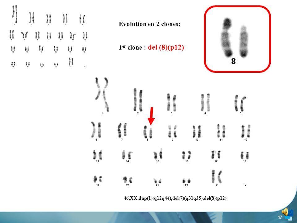 16 Délétion de la bande 7q32 = commune à tous les LZM 3 q31 q35 46,XX,dup(1)(q12q44),del(7)(q31q35)