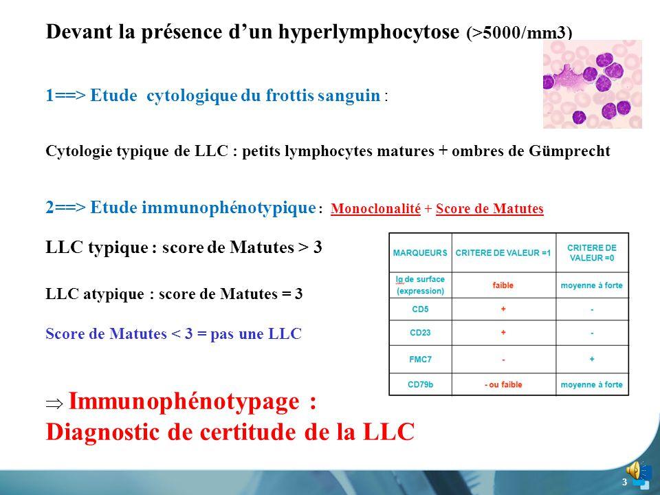 3 Devant la présence d'un hyperlymphocytose (>5000/mm3) 1==> Etude cytologique du frottis sanguin : Cytologie typique de LLC : petits lymphocytes matures + ombres de Gümprecht 2==> Etude immunophénotypique : Monoclonalité + Score de Matutes LLC typique : score de Matutes > 3 LLC atypique : score de Matutes = 3 Score de Matutes < 3 = pas une LLC  Immunophénotypage : Diagnostic de certitude de la LLC