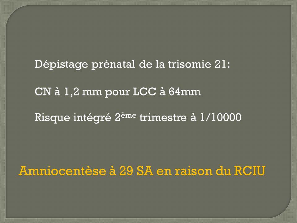 Dépistage prénatal de la trisomie 21: CN à 1,2 mm pour LCC à 64mm Risque intégré 2 ème trimestre à 1/10000 Amniocentèse à 29 SA en raison du RCIU