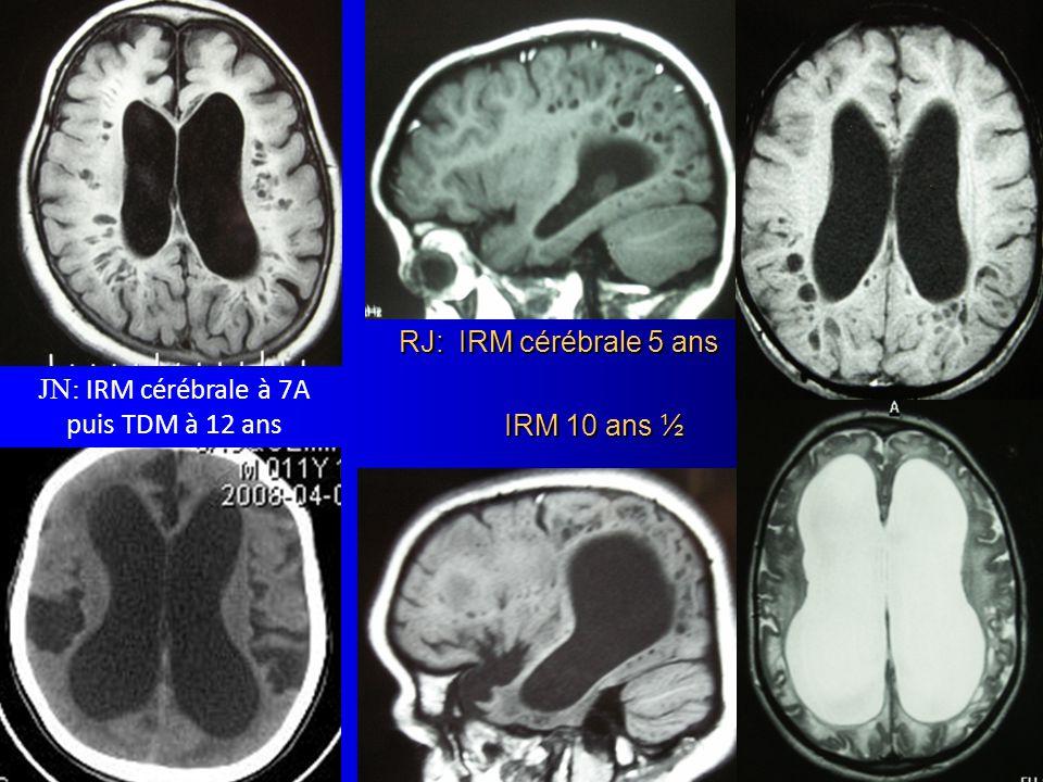 RJ: IRM cérébrale 5 ans IRM 10 ans ½ JN: IRM cérébrale à 7A puis TDM à 12 ans