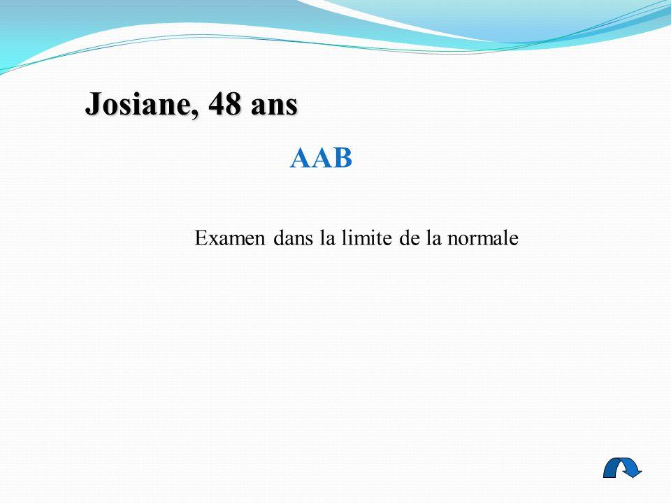 AAB Examen dans la limite de la normale Josiane, 48 ans