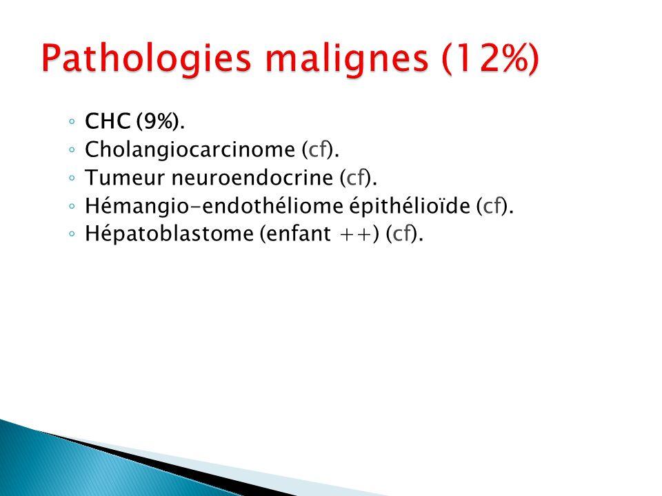 ◦ CHC (9%). ◦ Cholangiocarcinome (cf). ◦ Tumeur neuroendocrine (cf). ◦ Hémangio-endothéliome épithélioïde (cf). ◦ Hépatoblastome (enfant ++) (cf).
