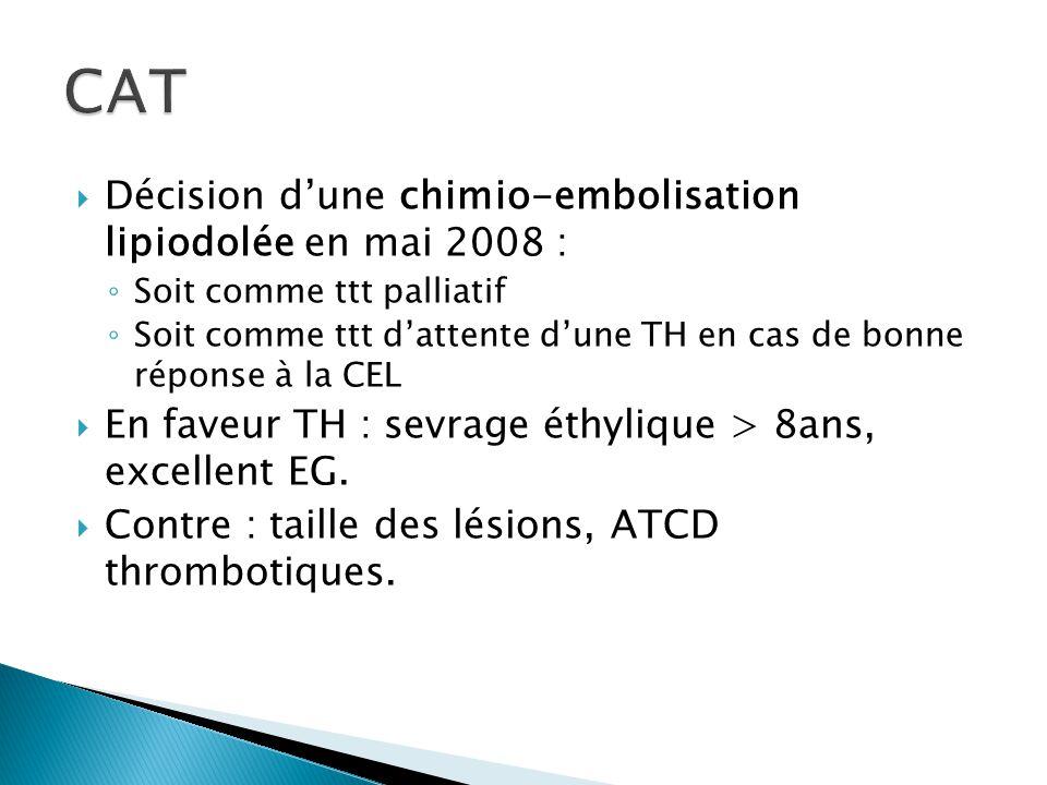  Efficacité de la CEL : les 2 localisations tumorales hépatiques ont très bien fixé le lipiodol sans prise de contraste au temps artériel résiduel avec franche réduction de taille et zone de nécrose tumorale au niveau du segment II.