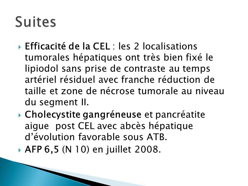  Efficacité de la CEL : les 2 localisations tumorales hépatiques ont très bien fixé le lipiodol sans prise de contraste au temps artériel résiduel av