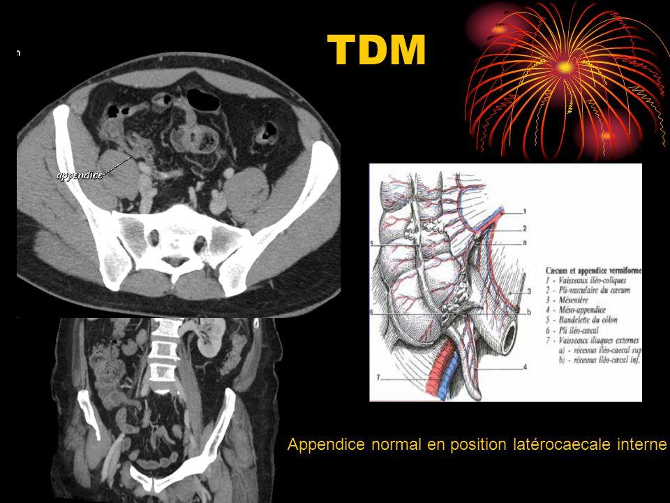 DONC Clinique+++ Imagerie/ écho si doute TDM formes compliquées