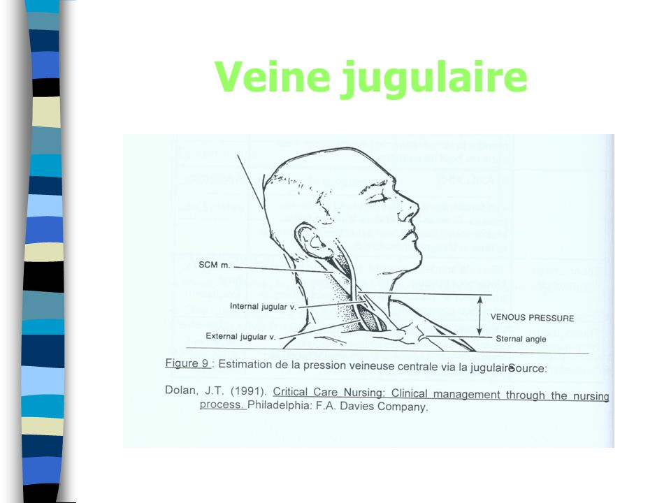 Veine jugulaire