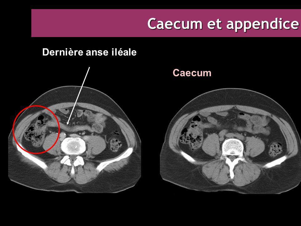 Caecum et appendice Dernière anse iléale Caecum