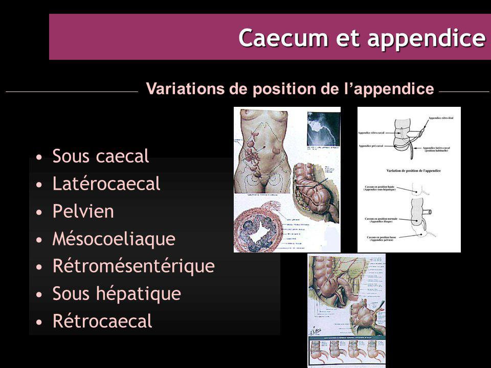 Caecum et appendice Sous caecal Latérocaecal Pelvien Mésocoeliaque Rétromésentérique Sous hépatique Rétrocaecal Variations de position de l'appendice