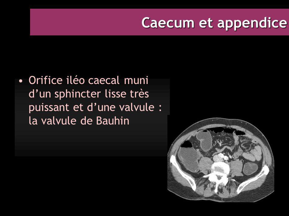 Caecum et appendice Orifice iléo caecal muni d'un sphincter lisse très puissant et d'une valvule : la valvule de Bauhin