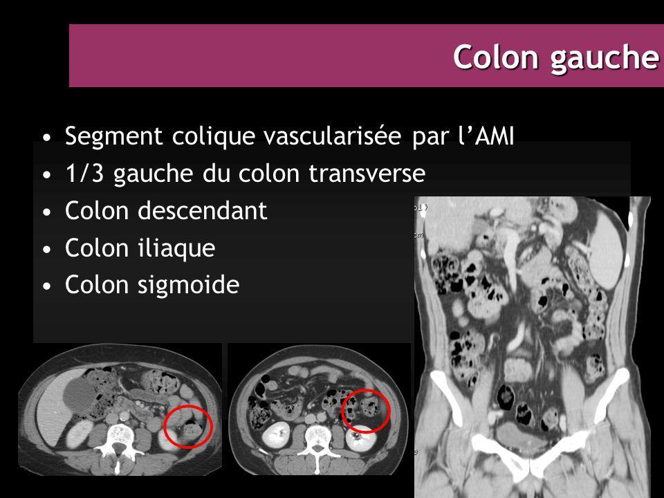 Colon gauche Segment colique vascularisée par l'AMI 1/3 gauche du colon transverse Colon descendant Colon iliaque Colon sigmoide