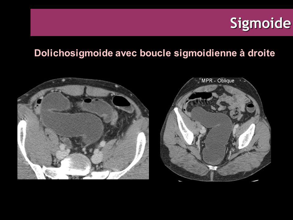 Sigmoide Dolichosigmoide avec boucle sigmoidienne à droite