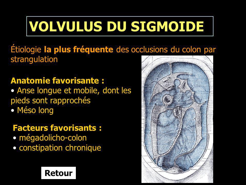 VOLVULUS DU SIGMOIDE Étiologie la plus fréquente des occlusions du colon par strangulation Anatomie favorisante : Anse longue et mobile, dont les pied