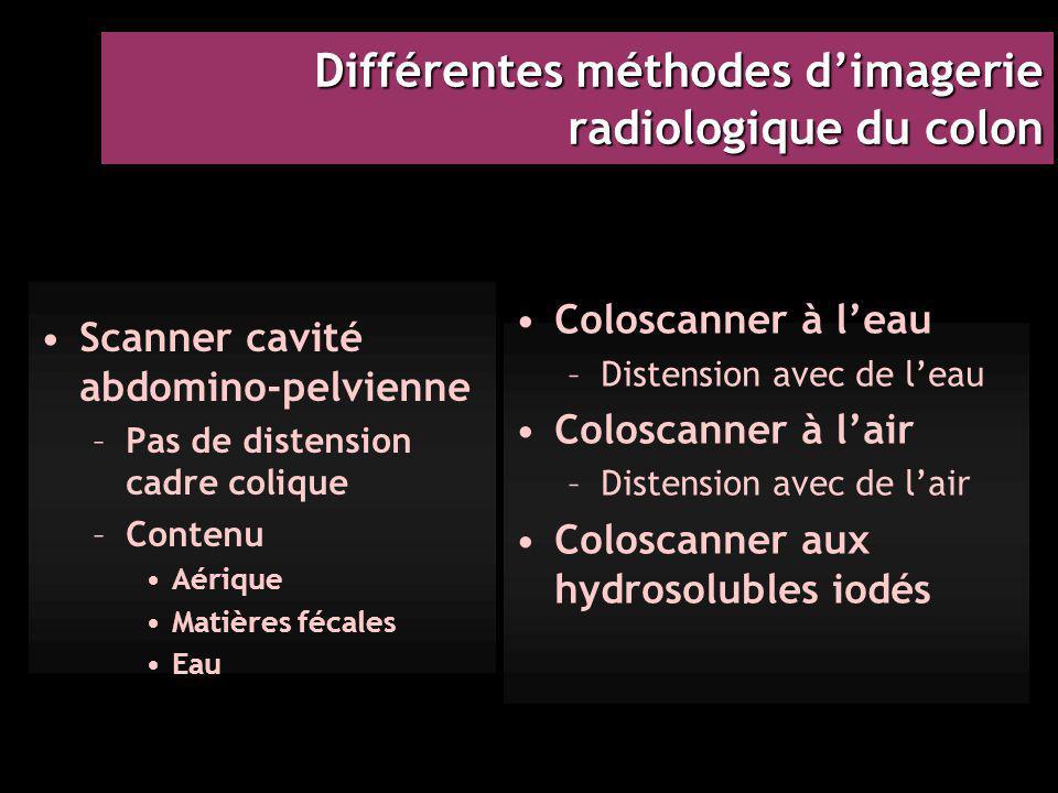 Différentes méthodes d'imagerie radiologique du colon Scanner cavité abdomino-pelvienne –Pas de distension cadre colique –Contenu Aérique Matières féc