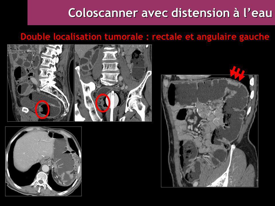Double localisation tumorale : rectale et angulaire gauche Coloscanner avec distension à l'eau