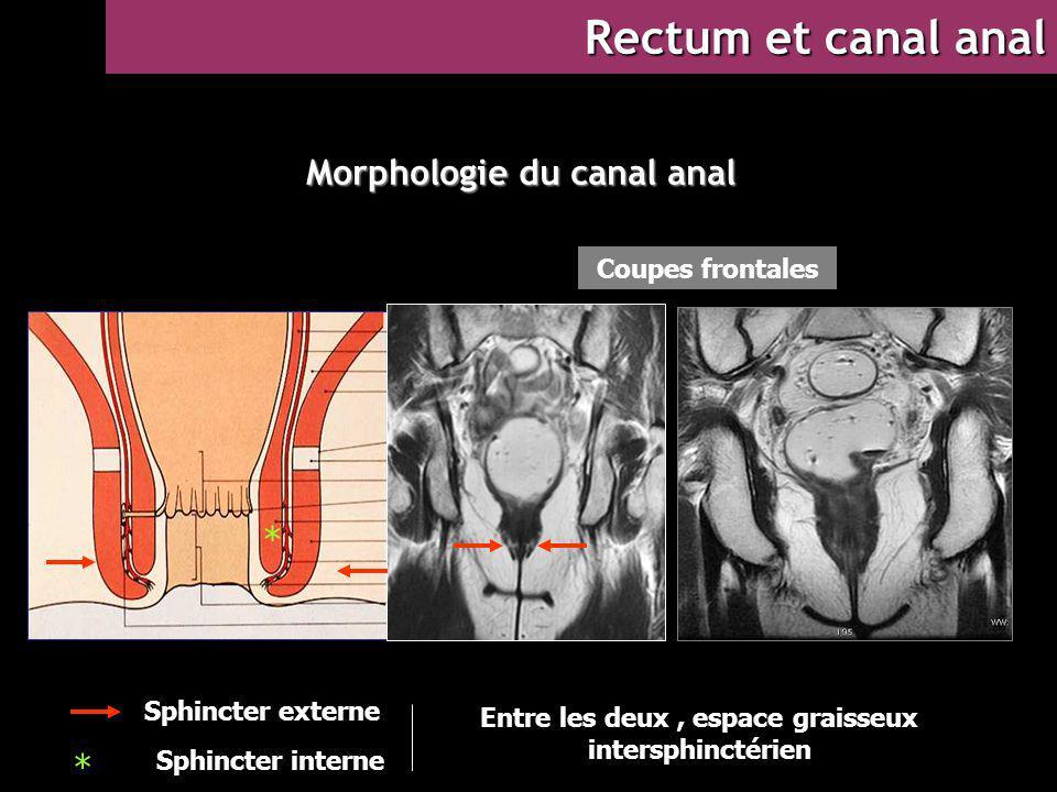 Morphologie du canal anal * Sphincter externe Sphincter interne Coupes frontales Entre les deux, espace graisseux intersphinctérien Rectum et canal an