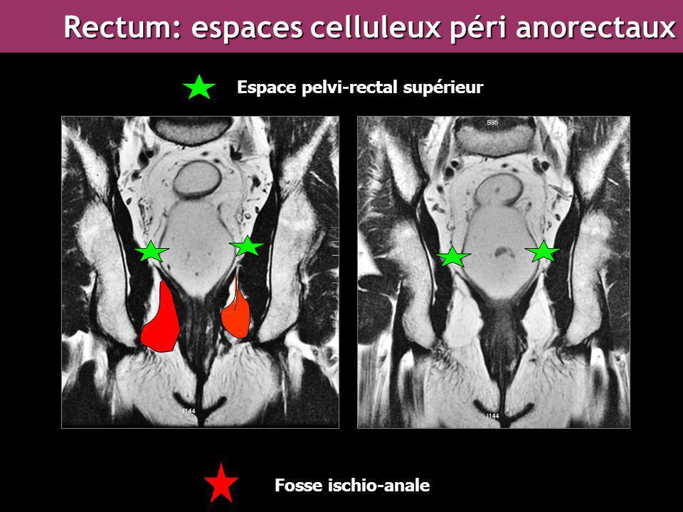 Fosse ischio-anale Espace pelvi-rectal supérieur Rectum: espaces celluleux péri anorectaux