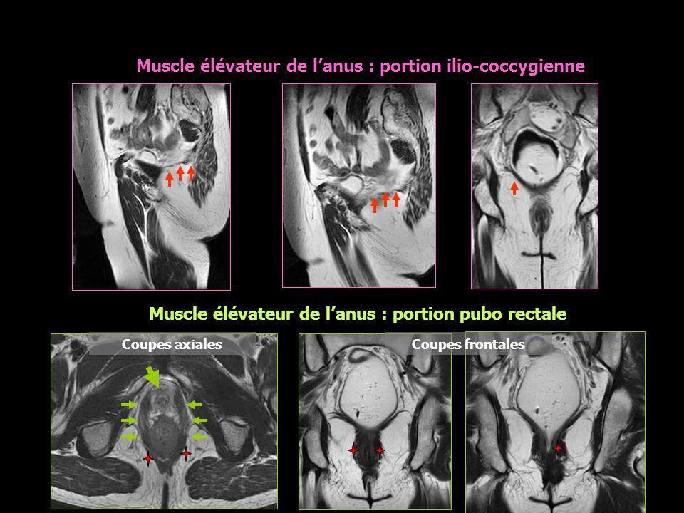 * Coupes axiales Muscle élévateur de l'anus : portion pubo rectale Coupes frontales Muscle élévateur de l'anus : portion ilio-coccygienne