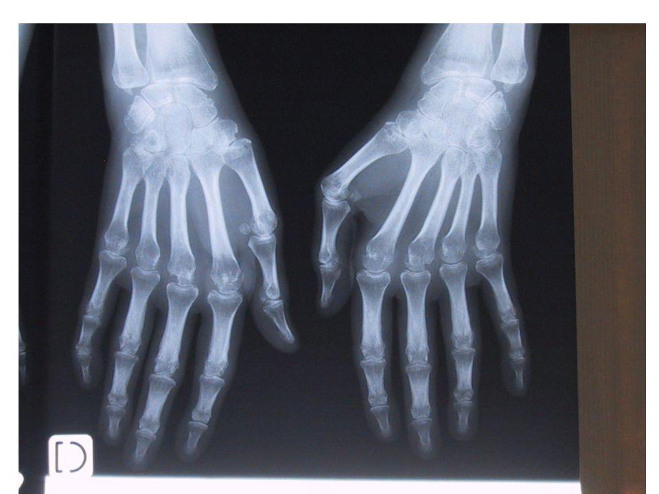 Question 5: 20 points  La maladie n est pas contrôlée cliniquement (2) et cela se traduit par une atteinte structurale (pincements articulaires et érosions osseuses) (5).