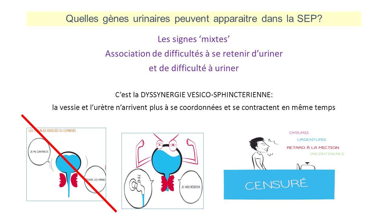 Quelles gènes urinaires peuvent apparaitre dans la SEP? Les signes 'mixtes' Association de difficultés à se retenir d'uriner et de difficulté à uriner