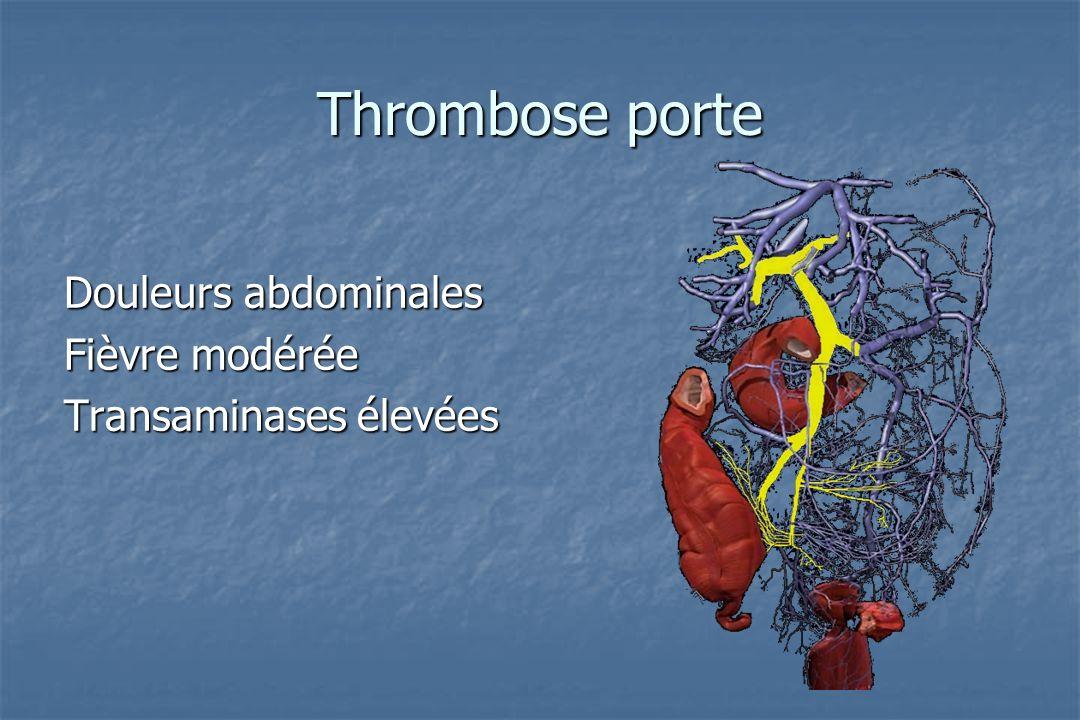 Thrombose récente Thrombose récente Signes directs Elargissement du vaisseau Absence de circulation Echo : hyperéchogénicité TDM : absence de rehaussement IRM : hypersignal séquences sang noir isosignal séquences sang blanc angio IRM ?
