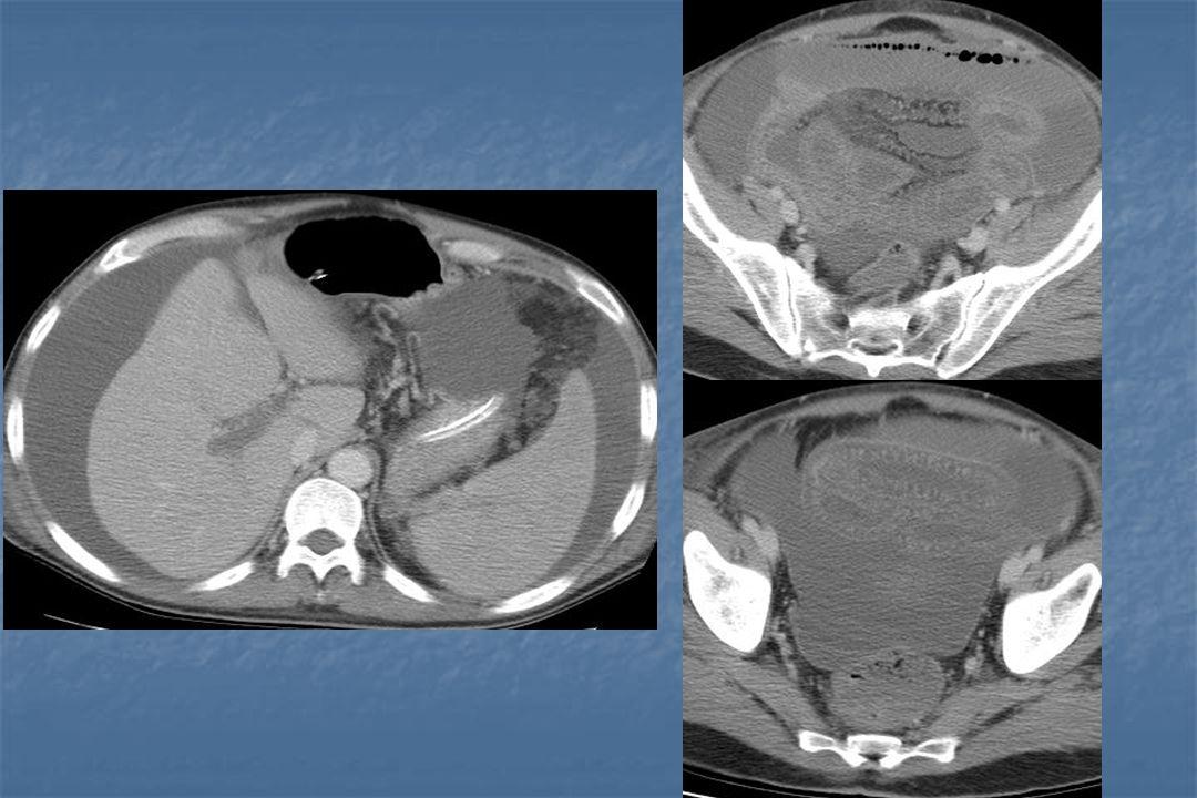 Conclusion Les thromboses aiguës des vaisseaux du foie sont des « vraies » urgences La plus fréquente est la thrombose porte Les thromboses veineuses (porte et hépatique) ont des conséquences parenchymateuses et les thromboses artérielles des conséquences biliaires L'imagerie joue un rôle primordial Le traitement repose essentiellement sur l'anticoagulation