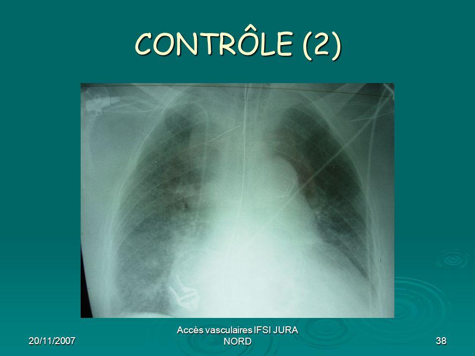 20/11/2007 Accès vasculaires IFSI JURA NORD38 CONTRÔLE (2)