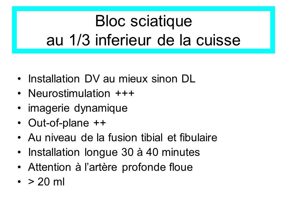 Bloc sciatique au 1/3 inferieur de la cuisse Installation DV au mieux sinon DL Neurostimulation +++ imagerie dynamique Out-of-plane ++ Au niveau de la