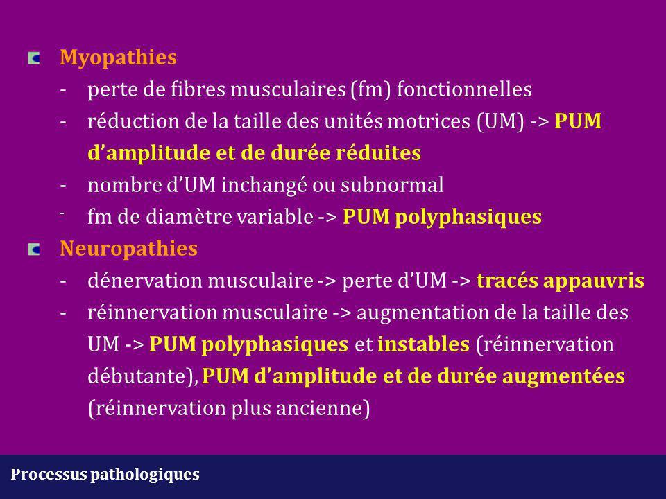 Processus pathologiques Myopathies - perte de fibres musculaires (fm) fonctionnelles -réduction de la taille des unités motrices (UM) -> PUM d'amplitu